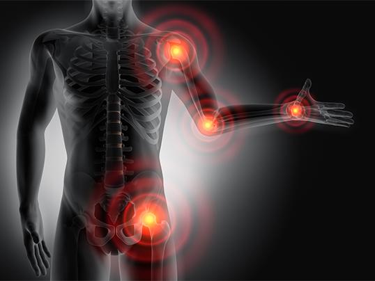 Fluoroquinolone Joint Pain